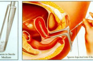 生定唔生?專家解構不育的疑惑 - 人工授孕方法